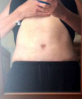 Tummy Tuck and Lipo - the Blog
