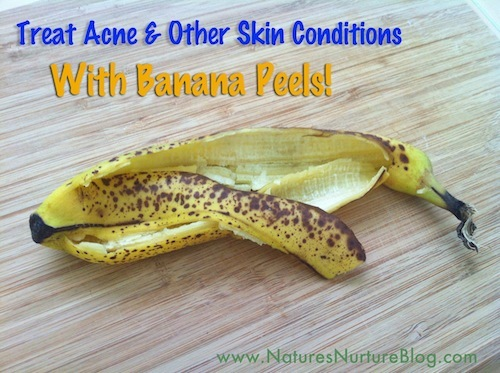 'Treat Acne & Other Skin Conditions With Banana Peels!'