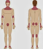 Eczema: como tratá-lo com terapias naturais