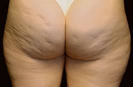 BBC :Pesquisa aponta Maior Pesadelo das Mulheres no Mundo é a Celulite .