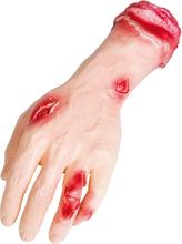 Avhuggen Hand med Köttsår