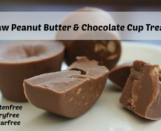 Raw Peanut Butter and Chocolate Cup Treats Recipe #DairyFree #GlutenFree #SugarFree