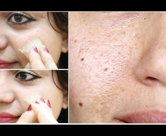 Try this Quick 1 Minute Trick to Close Large OPEN PORES, PIMPLES & TIGHTEN SKIN