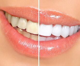 Cheapest and Natural teeth whitening