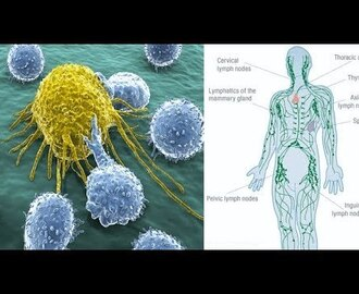 How Cancer Spreads Through The Lymphatic System (And How To Keep It Heal...