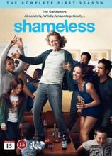 Shameless - Sesong 1 (3 disc)