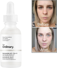 Ordinary Niacinamide 10% + Zinc 1% Face Serum Vitamin B3 Whitening Oil Balance Reduce Blemishes Brighten Skin Color Essence 30ML