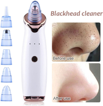 Blackhead Remover Vacuum Face Deep Clean Skin Care Machine Pore Cleaner Acne Pimple Removal Vacuum Suction Tool Dermabrasion